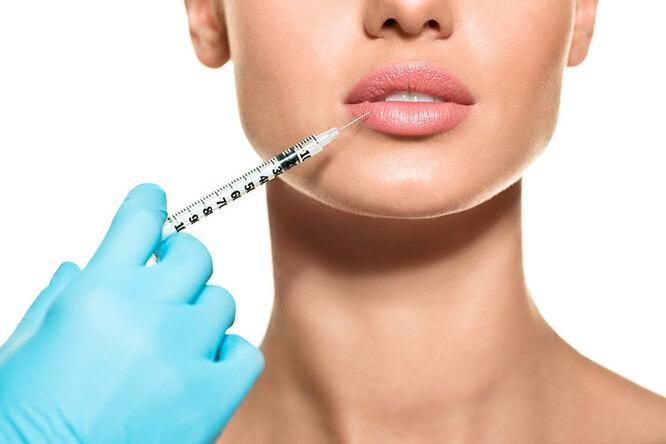 Увеличение губ — самая популярная процедура эстетической медицины